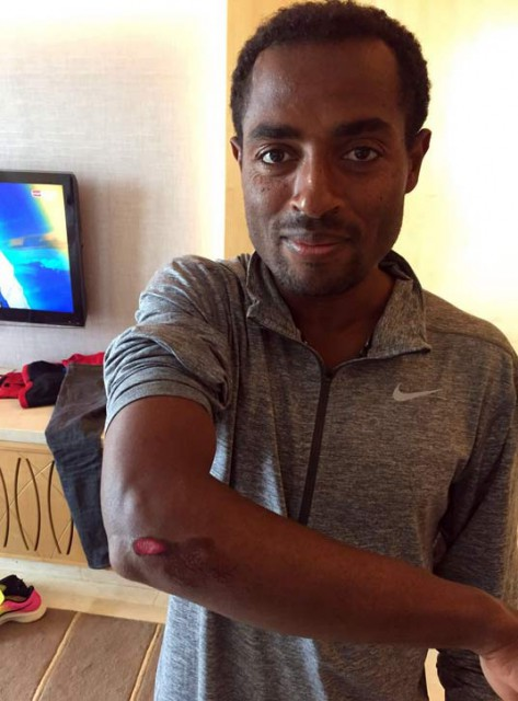 dubai-mar-2017-injury-bekele